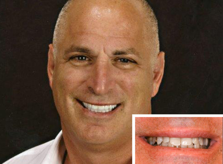 Carlsbad porcelain veneer patient showing off his new smile.