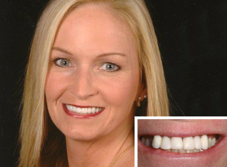 San Marcos tooth veneer patient showing off her new smile.