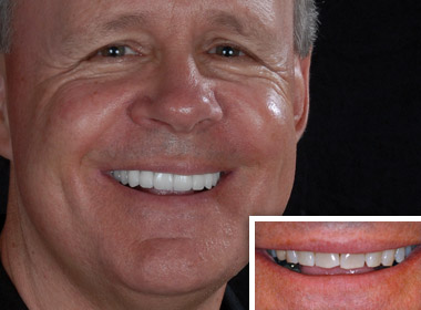 Jerry-Patient of Carlsbad dentist Dr. Kimberly Corrigan-Dankworth