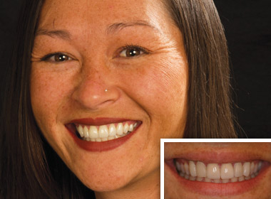 Tiffany-Before and After photos of a sedation dentistry patient of Dr. Dankworth near Encinitas