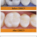 cerec-before-after-1