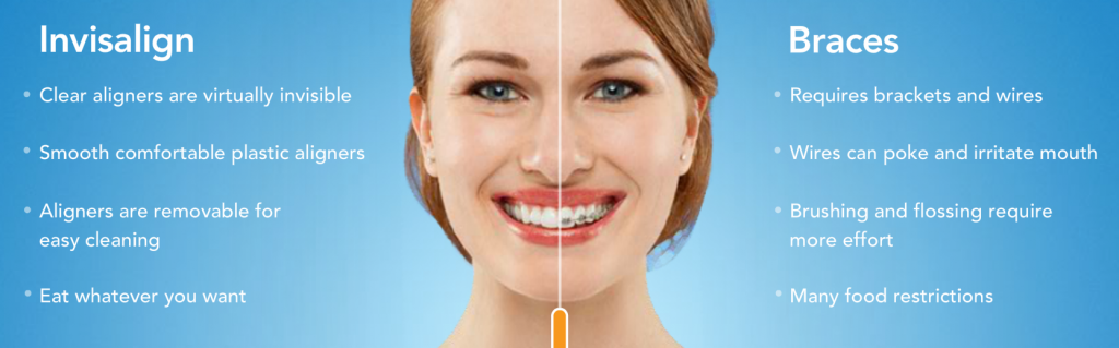 Comparison of Invisalign clear braces vs traditional metal braces.