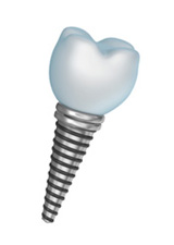 A dental implant in Carlsbad is the perfect solution to replace a missing tooth