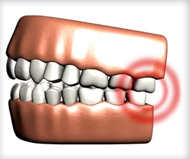 La Costa Dental Excellence provides emergency dental care for toothaches and other dental emergencies.