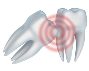 Sometimes wisdom teeth can cause problems for patients and thus it good to have a preventative wisdom teeth removal.