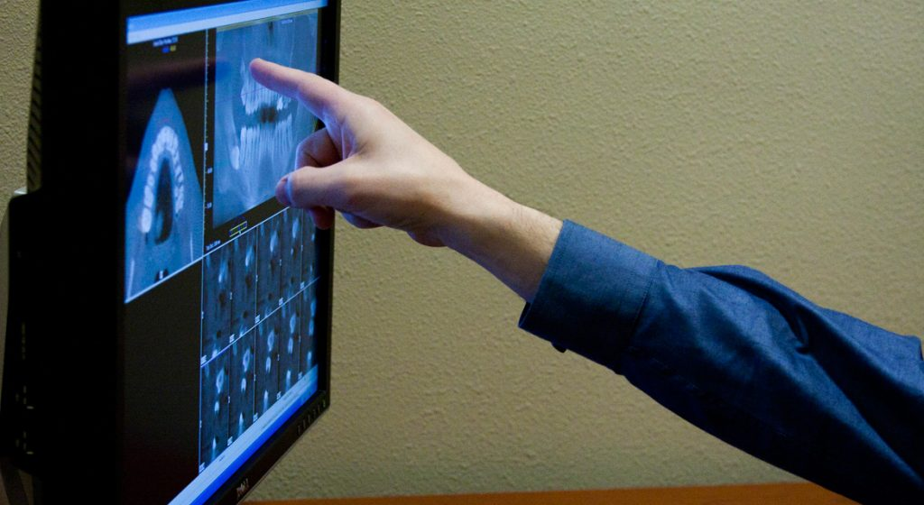 Digital xrays help provide insight for our Carlsbad dentist.